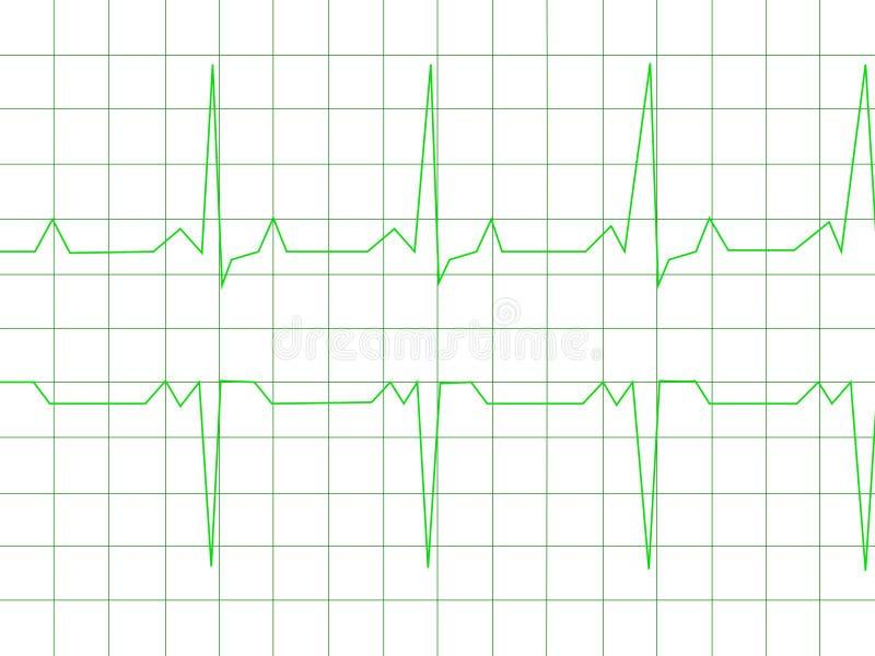 Normal Heart Rhythm vector illustration