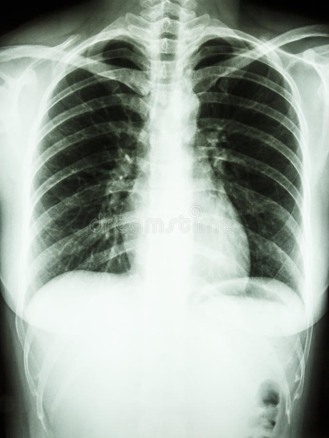 Normal human' chest stock image
