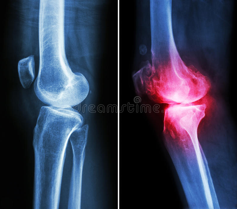 Normal knee and osteoarthritis knee stock photography