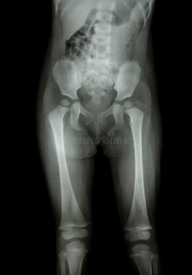Normal kropp för filmröntgenstråle av barnet (mage, bakdel, lår, knäet) royaltyfria foton