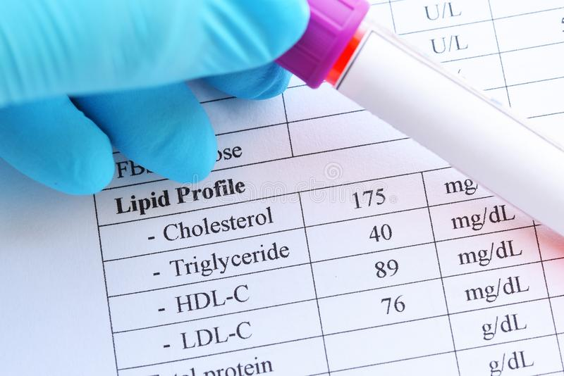 Normal lipid profile test result royalty free stock photos