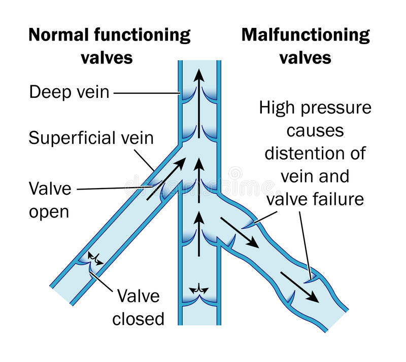 Download Normal And Malfunctioning Vein Valves Stock Vector - Image: 12815320