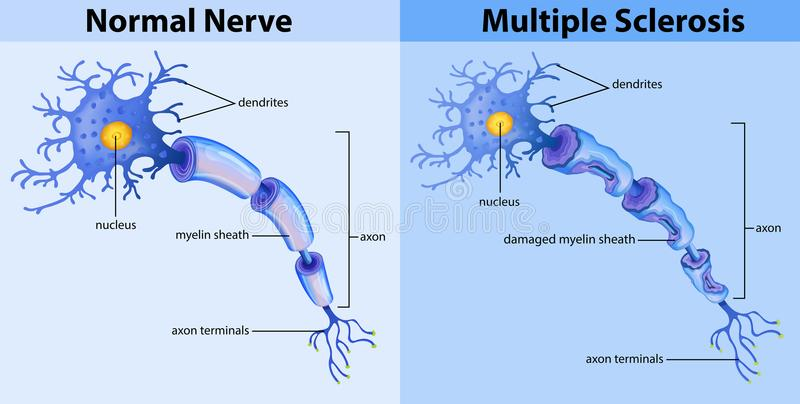 Normal nerve and multiple sclerosis royalty free illustration
