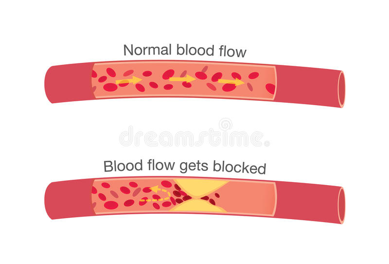 Normal stages of blood flow and blocked stages vector illustration