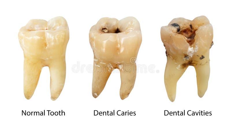 Normal tand, tand- karies och tand- hål med kalkyl Jämförelsen mellan skillnaden av tänder förfaller etapper vitt royaltyfri foto