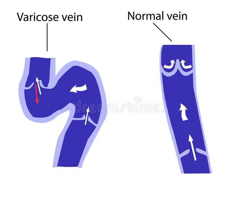 Normal vein and varicose vein royalty free illustration