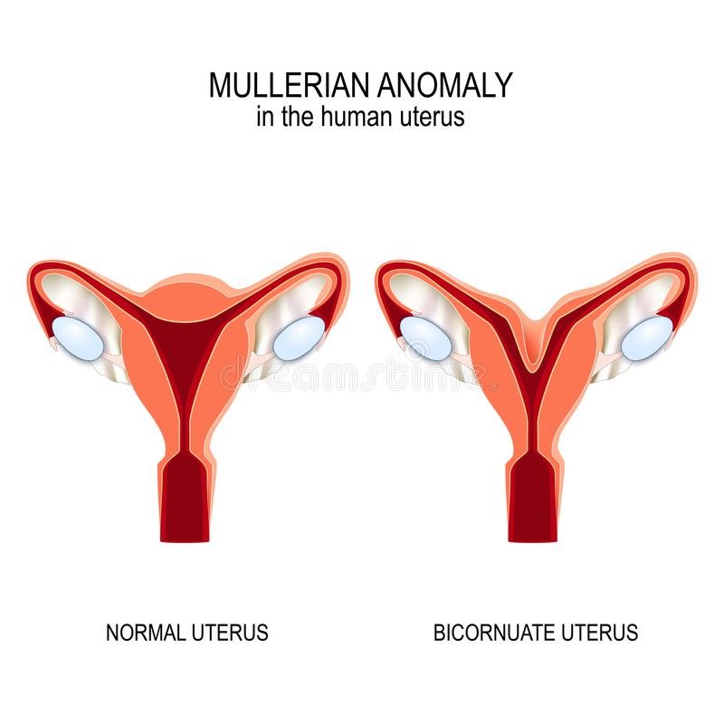 Free Normal Womb And Bicornuate Uterus Royalty Free Stock Photography - 142978027