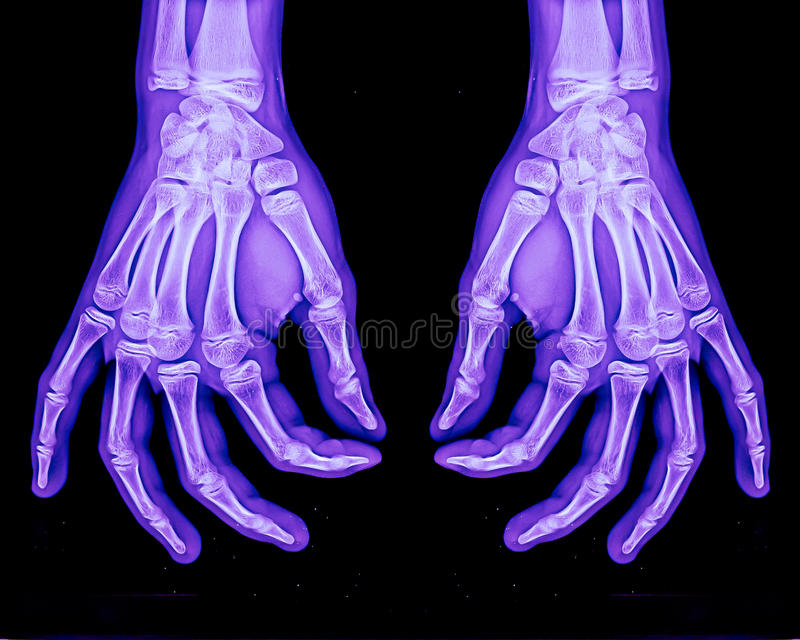 Download Normal xray of both hands stock photo. Image of inflammation - 24374550