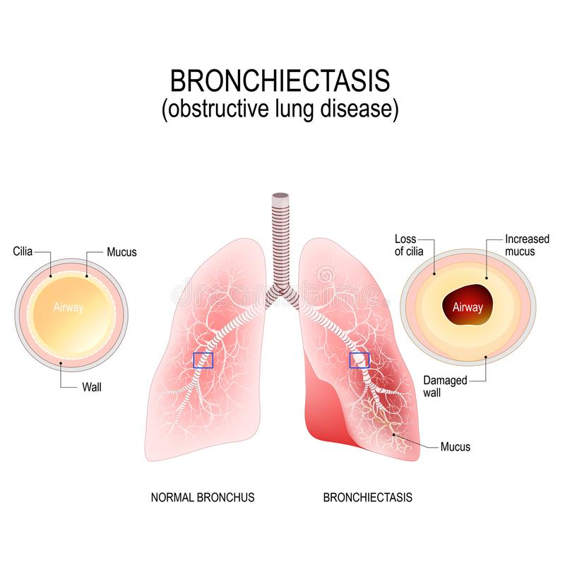 Normale bronchie en bronchiectasis obstructieve longziekte royalty-vrije illustratie