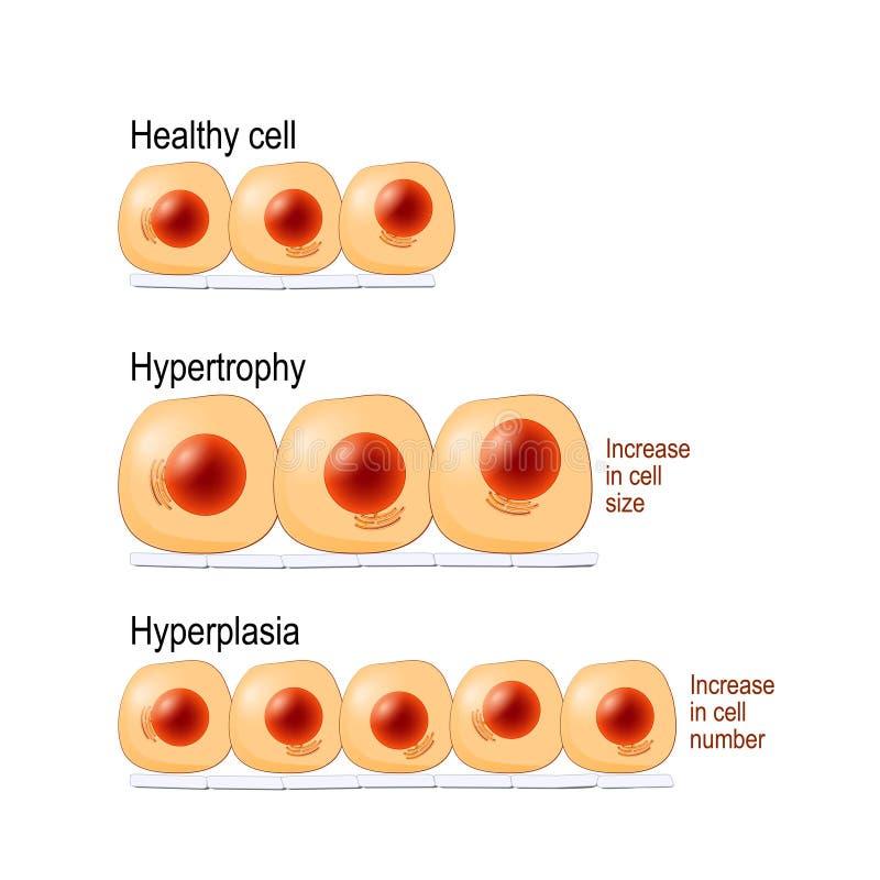 Normale cellen, hypertrofie, en hyperplasia stock illustratie