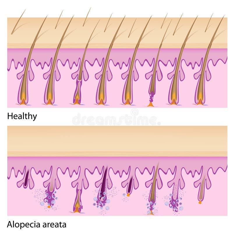 Normale haar en van Alopecia areata royalty-vrije illustratie