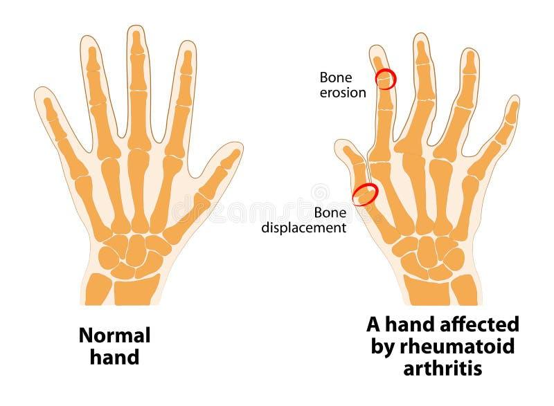 Normale hand en Reumatoïde Artritis royalty-vrije illustratie