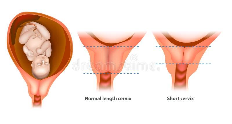 Normale lengte en korte cervix stock illustratie