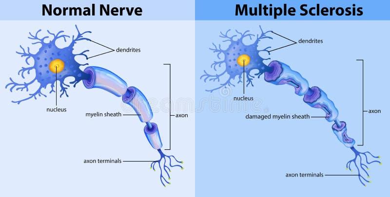 Normale zenuw en multiple sclerose royalty-vrije illustratie