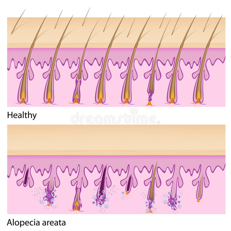 Normales Haar und Alopezie areata lizenzfreie abbildung