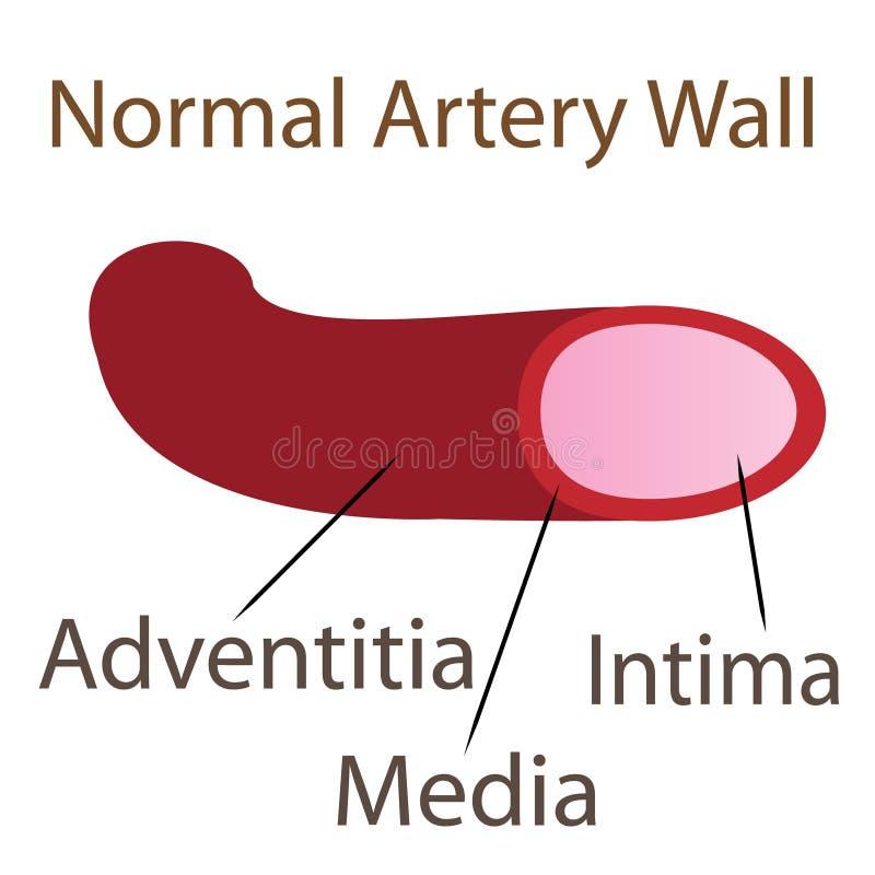 Normalna arterii ściany ilustracja ilustracji
