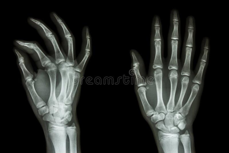 Normalna istoty ludzkiej ręka obrazy royalty free