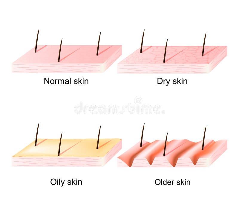 Normalna, suchej, wazeliniarskiej, młodej i starej skóra, przedziałowy widok ilustracji