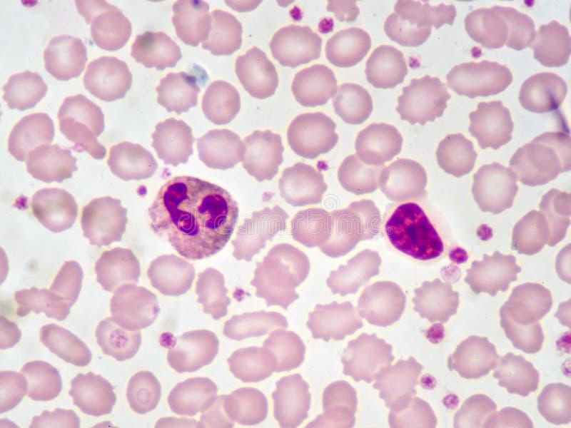 Normalne Białe komórki krwi zdjęcie royalty free