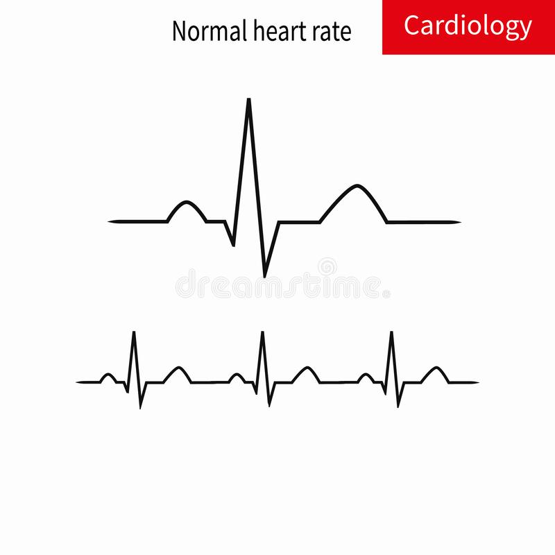Normalny ECG kompleks i normalna sinus rytm ilustracji
