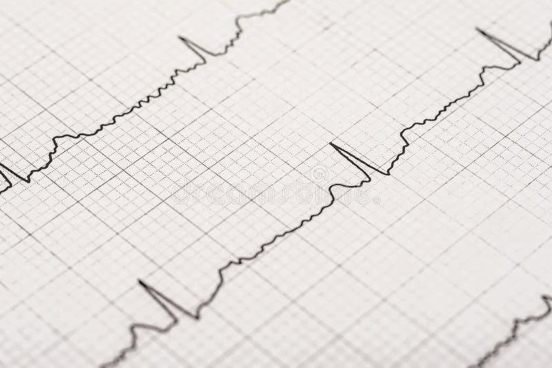 Normalny elektrokardiograma rejestr obrazy stock