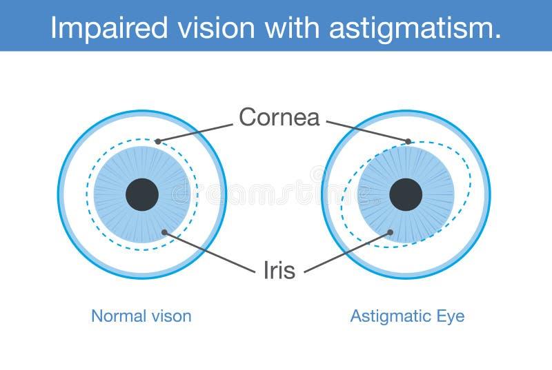 Normalny wzrok i Nadwyrężony wzrok z astygmatyzmem w frontowym widoku royalty ilustracja