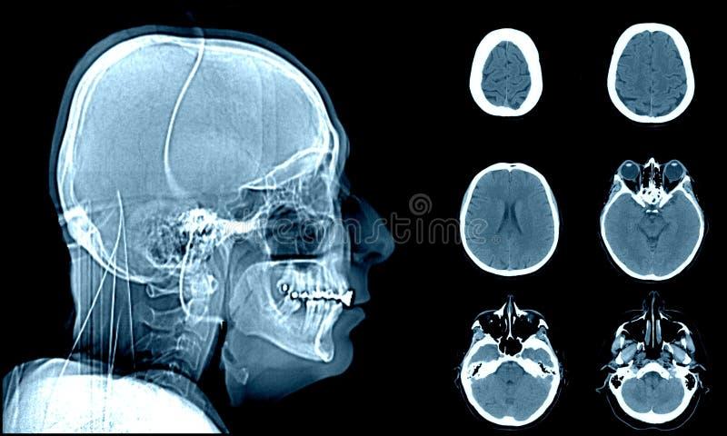 Normalt huvud på CT-bildläsningar arkivbilder