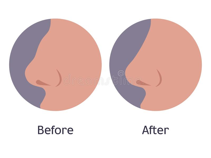Nose before and after plastic surgery. Vector illustration of a nose before and after plastic surgery. Female handsome nose after rhinoplasty. Correction stock illustration