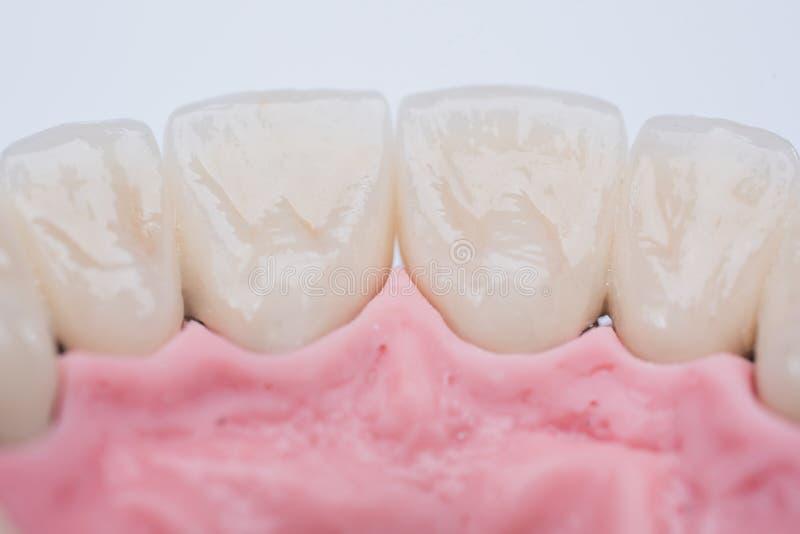 Nowi biali ceramiczni dentures na lekkim tle zdjęcia stock