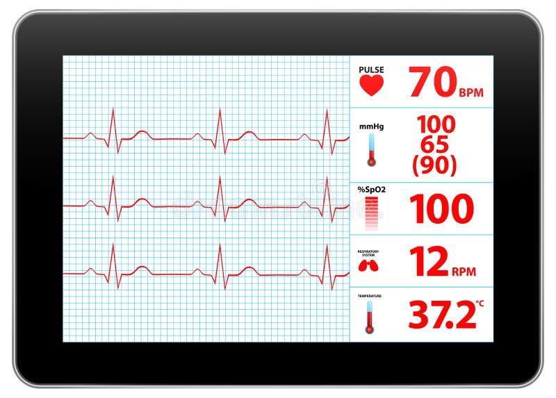 Nowożytny elektrokardiograma monitoru przyrządu pokaz ilustracja wektor