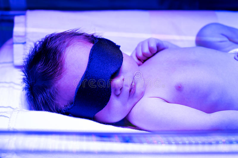 Nowonarodzonego dziecka odbiorczy światłolecznictwo dla żółtaczki zdjęcia stock