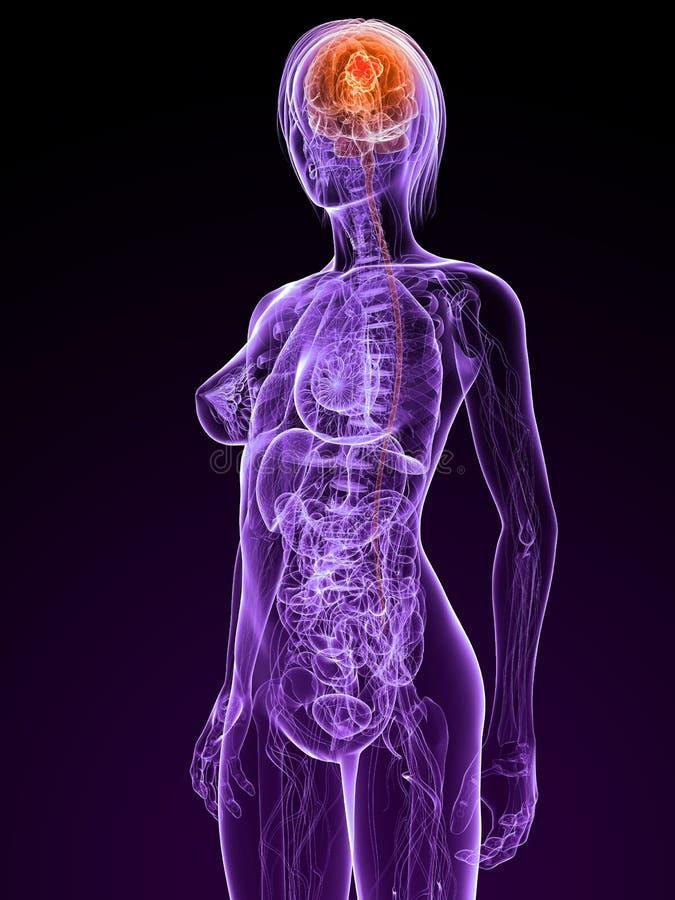 nowotwór cerebralny ilustracja wektor