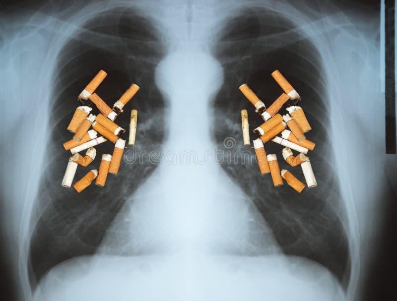 Nowotwór płuc fotografia stock