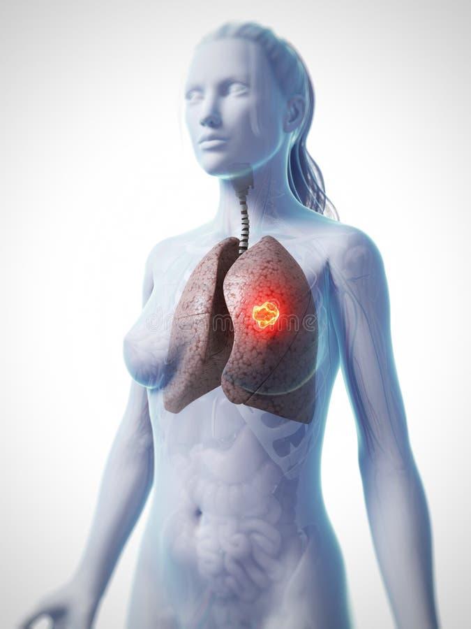 Nowotwór płuc ilustracja wektor