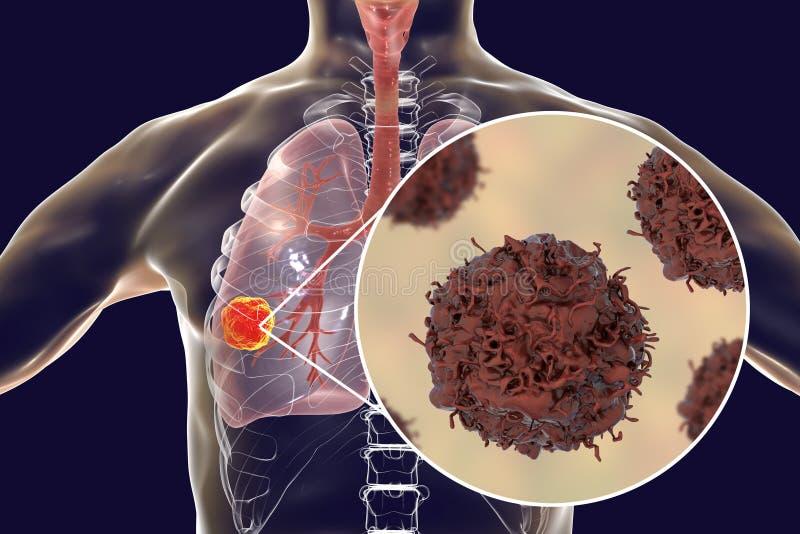 Nowotwór płuc, ilustracja ilustracji
