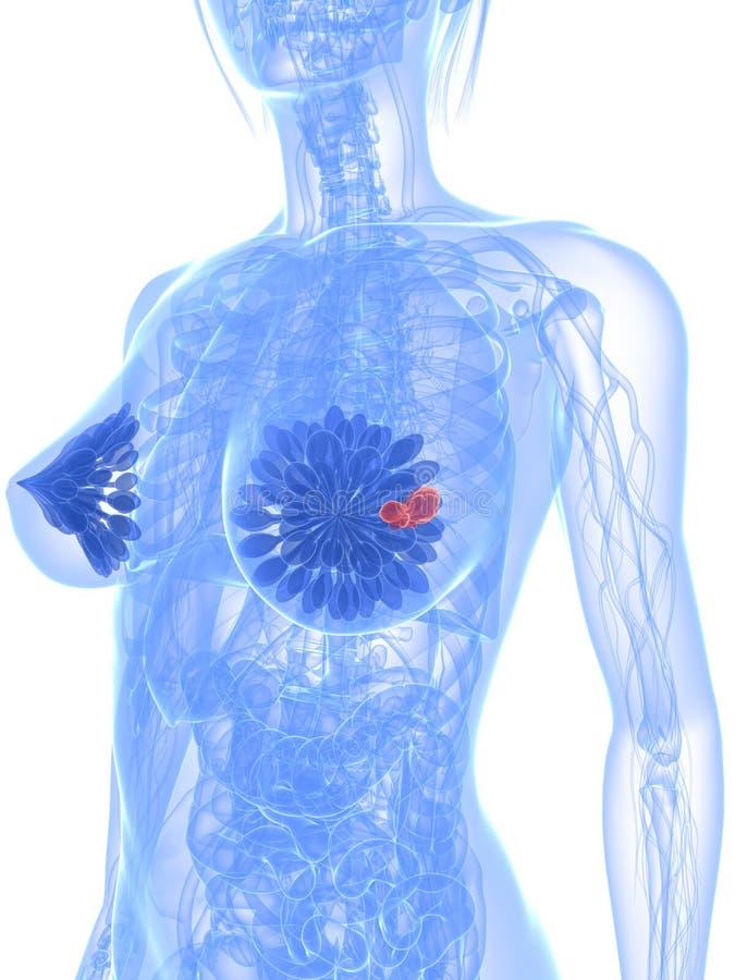 nowotwór piersi royalty ilustracja