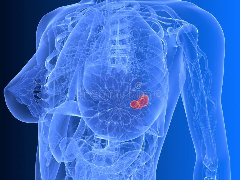 nowotwór piersi ilustracja wektor