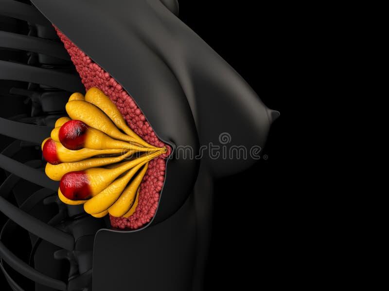 Nowotwór piersi w ludzkiej 3d ilustraci, odosobniony czerń ilustracji