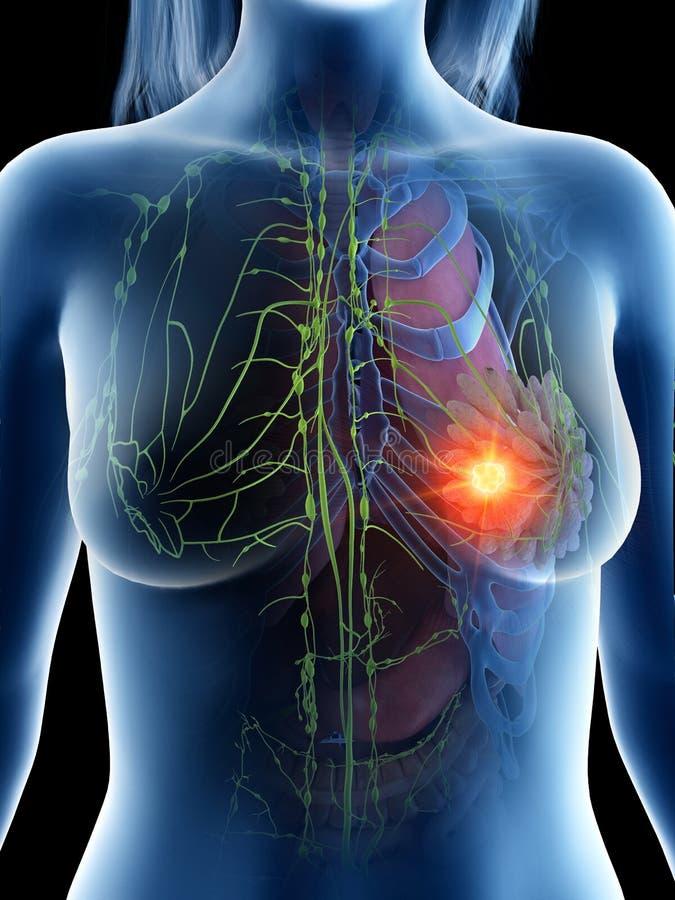 nowotw?r piersi lekarstwa walki znaleziska funduszu pocztowy znaczek ilustracja wektor
