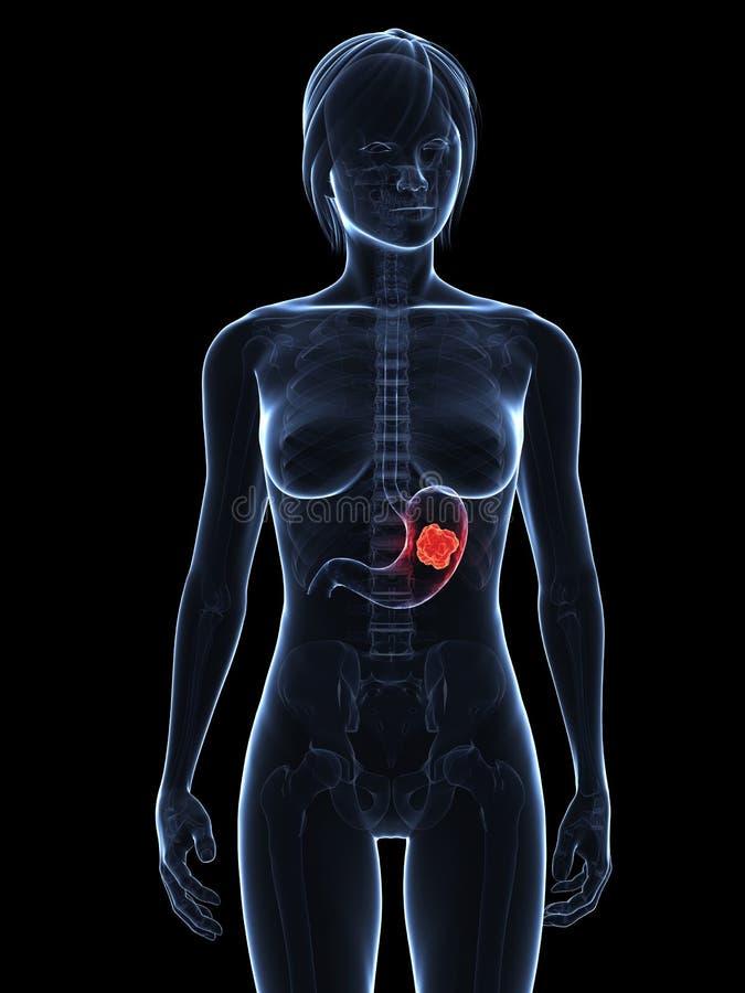 nowotworu żołądek ilustracji