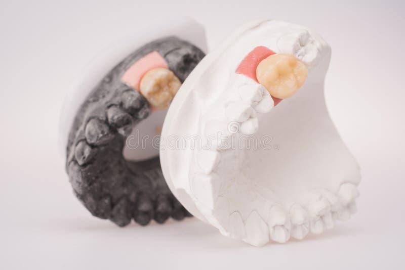 Nowy biały ceramiczny ząb z dentures na lekkim tle obrazy royalty free