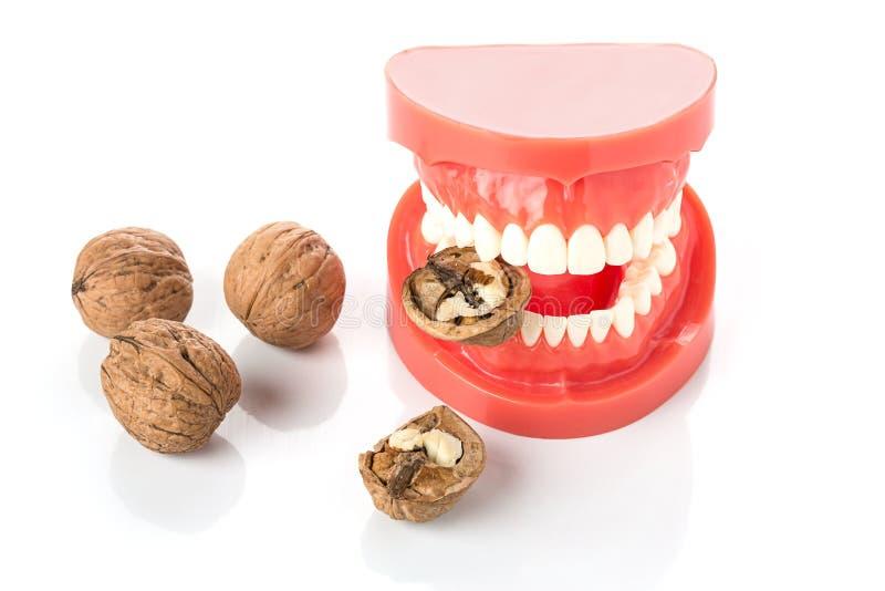 Nozes dentais do modelo da maxila imagem de stock royalty free