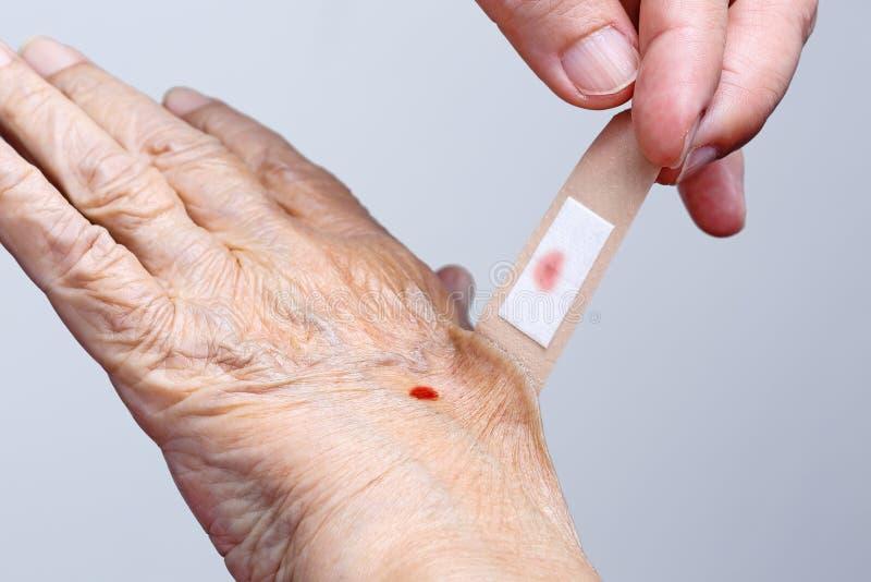 Nurse pulling adhesive bandage off elderly hand. Nurse pulling adhesive bandage off elderly woman hand stock photo