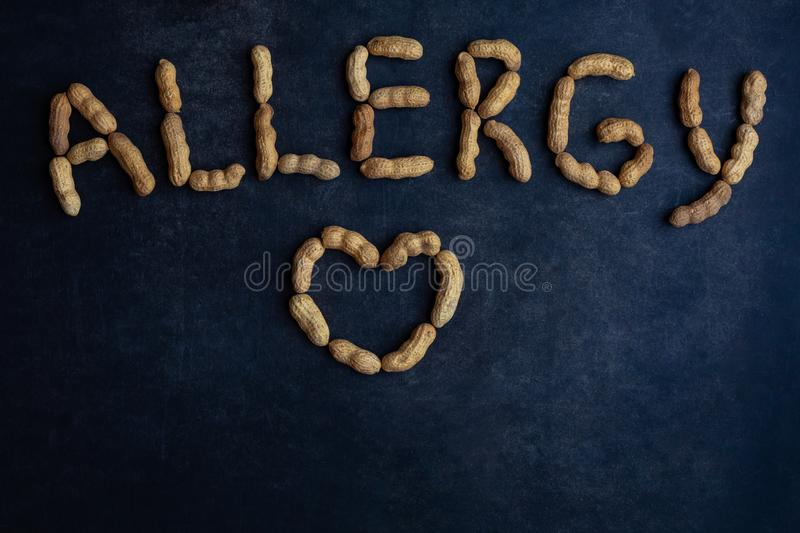 Nuts allergy signed with peanut on a blackboard. royalty free stock photo