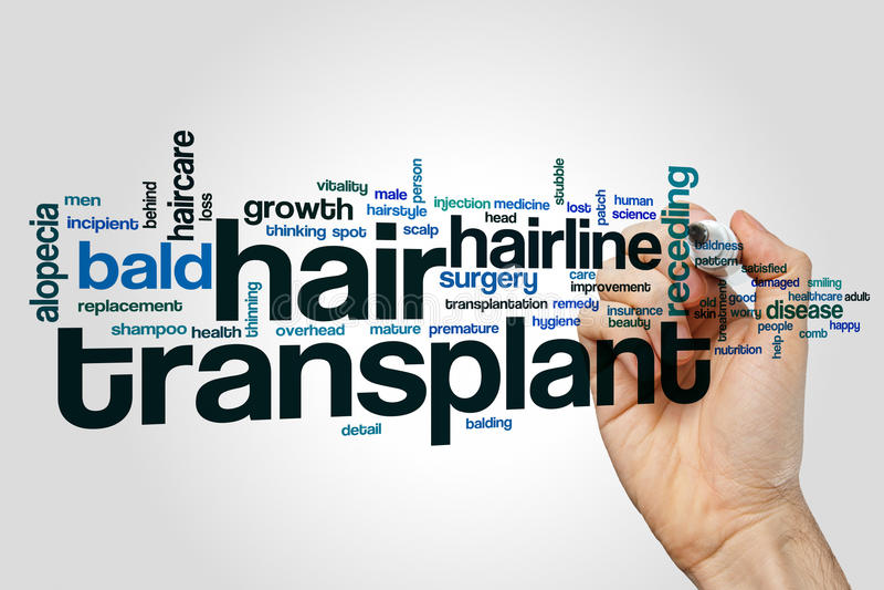 Nuvem da palavra da transplantação do cabelo imagem de stock royalty free