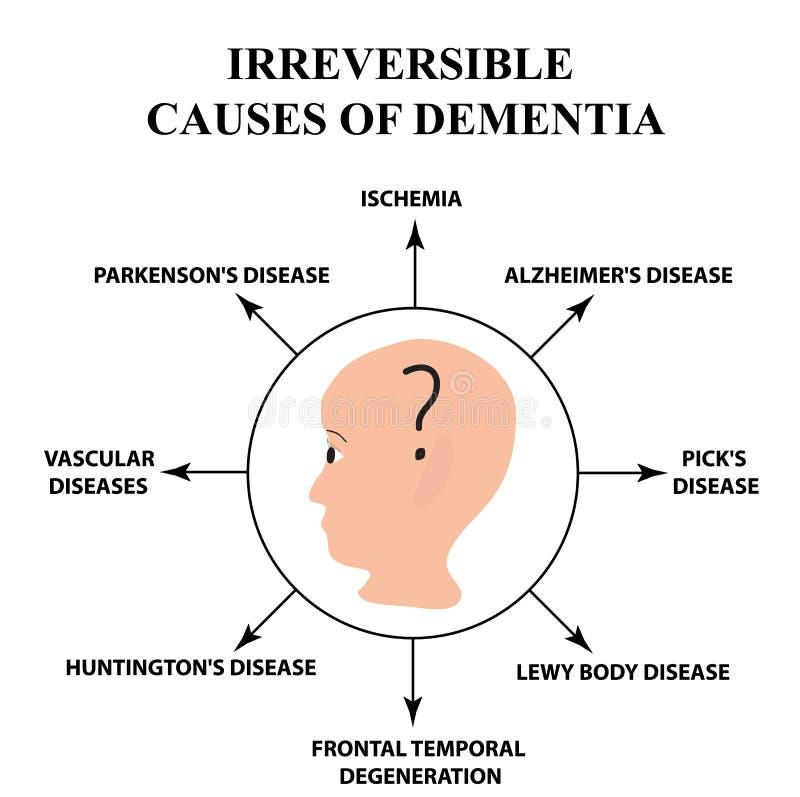 Oåterkalleliga orsaker av senil demens Sjukdom för Alzheimer ` s Infographics Vektorillustration på isolerad bakgrund stock illustrationer