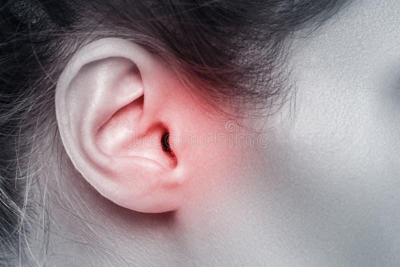 Oído femenino con la fuente de dolor imagen de archivo libre de regalías
