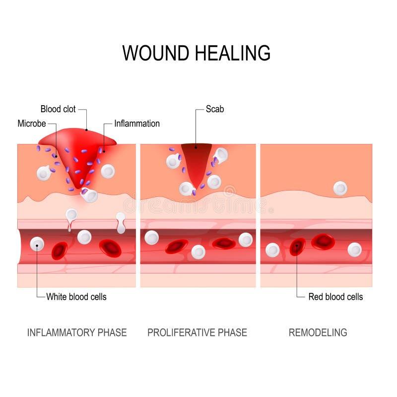 Обветренный процесс заживления Ушиб и воспаление ткани бесплатная иллюстрация