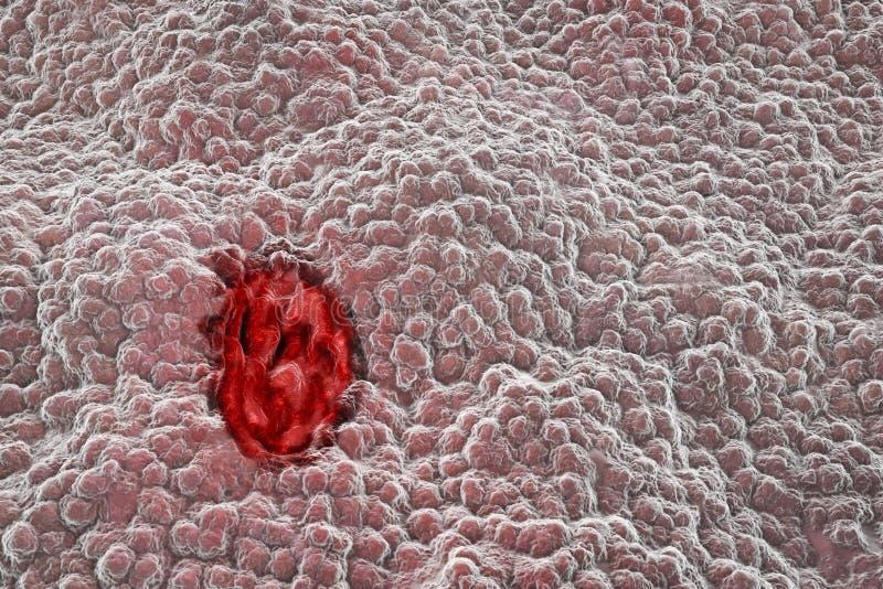 Żołądka mucosa z wrzodem ilustracji