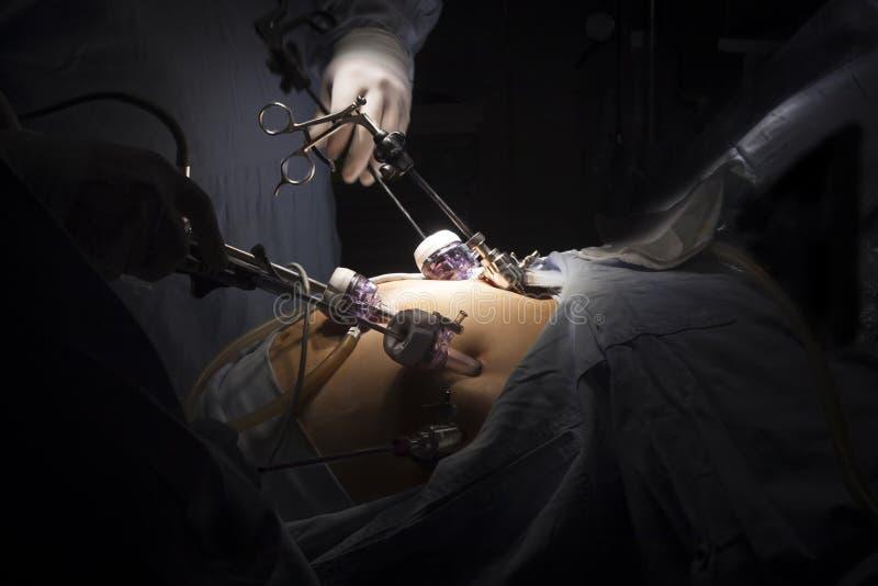Żołądkowa obwodnicy operacja obraz stock